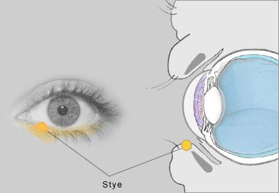 Stye in Your Eye Look Like What